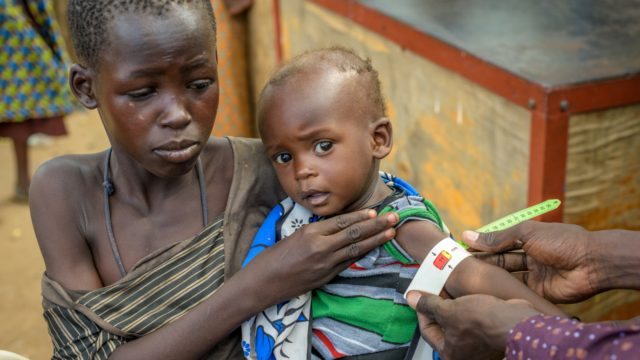 Meet 9-month-old Akusi in Kenya. During the hunger crisis she has become severely malnourished. She's receiving treatment, but her weight is still dropping.