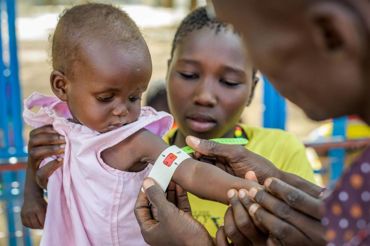 Baby Charity Asibitar, 8 months, being held by her mother, Angolol Esra, as a community health worker measures her arm using a MUAC device which measures the middle-upper arm circumference.