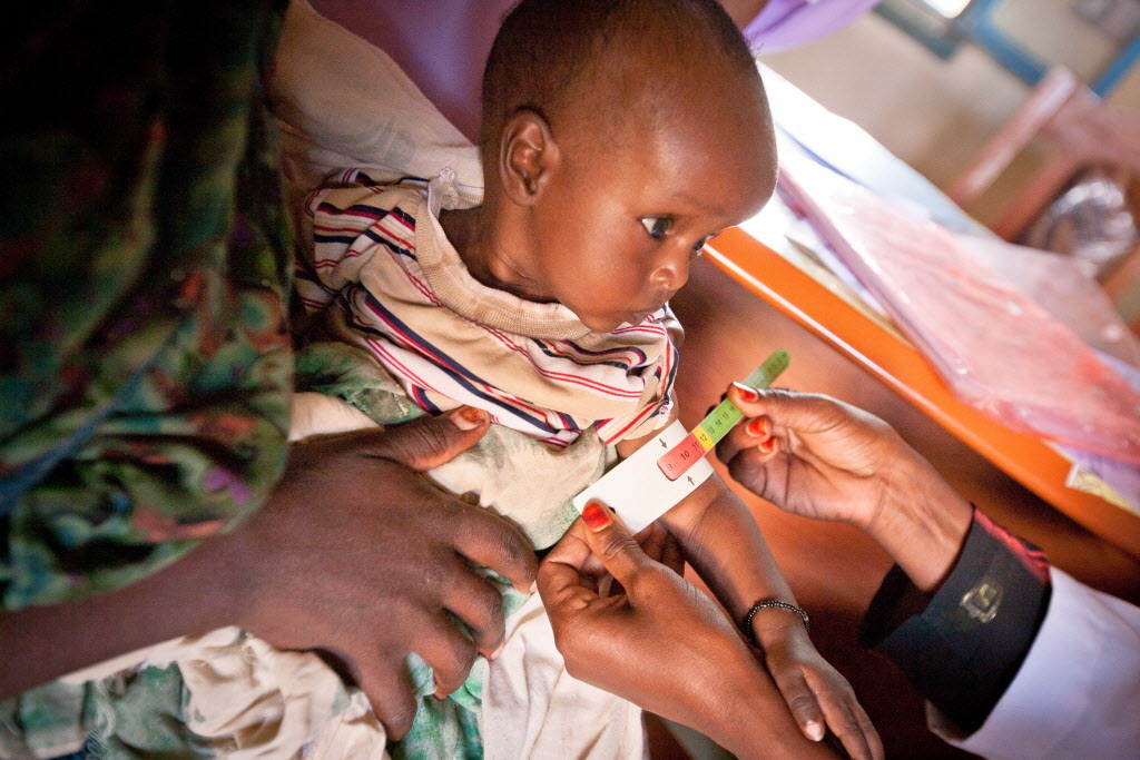 Malnourished baby girl getting arm measured. ©2010 Ashley Jonathan Clements | World Vision