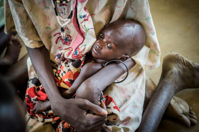 Ayei Wieu, a mother of 5, holds her severely malnourished baby, 3-month-old Malou Lual, at a feeding center in Warrap state, South Sudan. Millions of people are struggling to find enough to eat, and famine was declared in parts of the country Feb. 20. (©2015 World Vision/photo by Jon Warren)