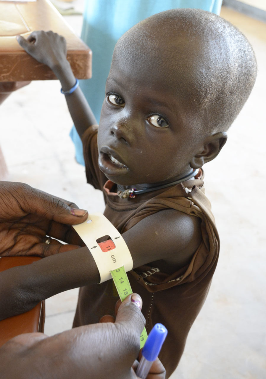 South Sudan girl malnourished, arm band measurement